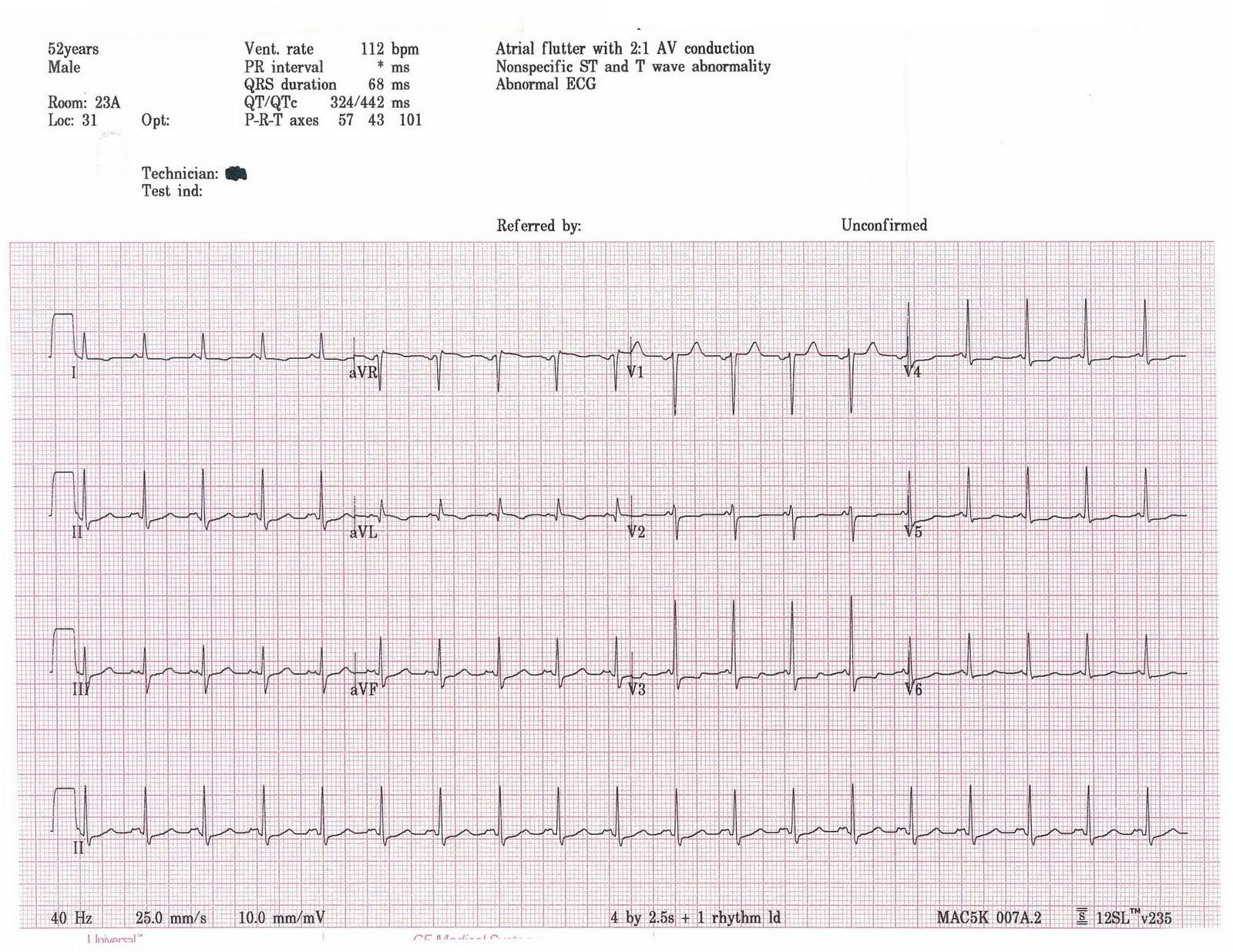 Heart Specific Ekg