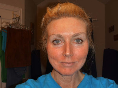 Rencic Dermatology Actinic Keratoses