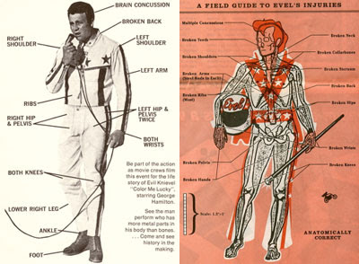 Evel Knievel Knochenbrüche