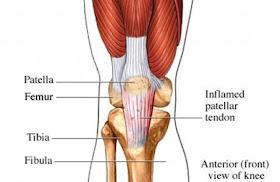¿voltaren funciona en la tendinitis rotulia