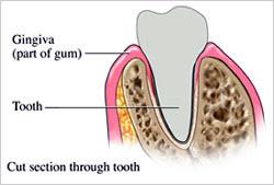 gum-diseases