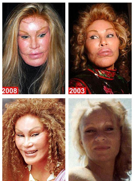 Before And After Bathroom Updates From Rate My Space: Plastic Surgery Before And After: Cat Woman Plastic Surgery