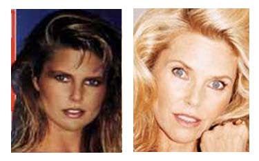 Plastic Surgery Before After Christie Brinkley Plastic