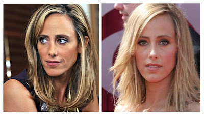 Plastic Surgery Before And After Kim Raver Nose Job