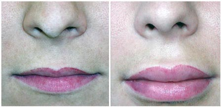 Plastic Surgery Before And After Lip Augmentation Before