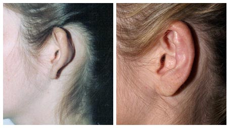 Plastic Surgery Before And After: Otoplasty Before And After