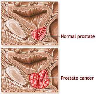 prostata ubicacion