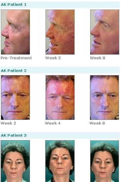 Sterling Minerals Skin Care Guide Skin Cancer Revisited Efudex