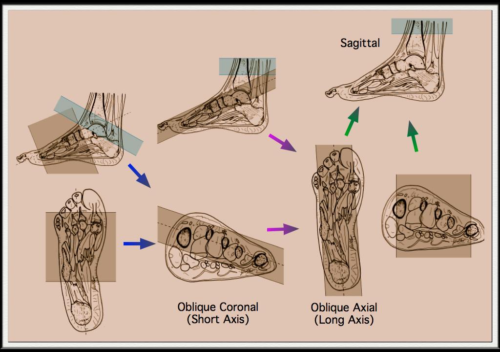 MRI BLOG: Foot (Midfoot) MRI