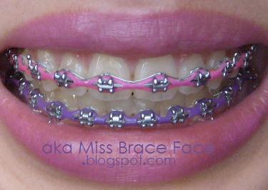 Pink Violet Cute Braces Colors Braces Colors Pink Braces