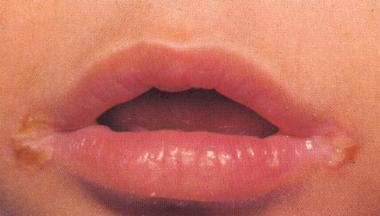 Doctors Gates: Angular stomatitis: can be treated at home!!