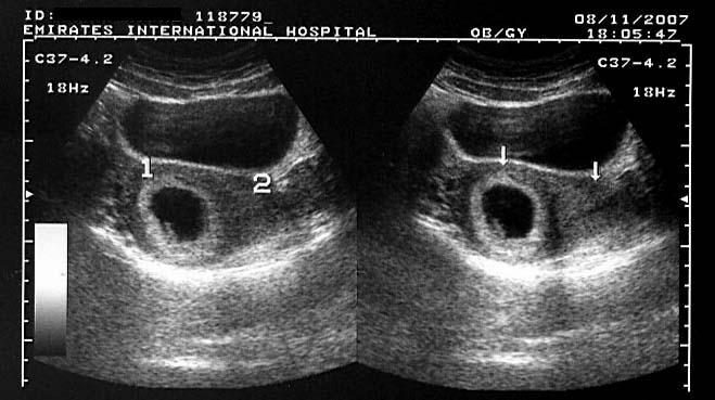 On Radiology Ultrasound Images Of Bicornuate Uterus