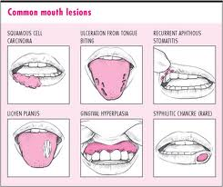 Mouth Ulcer ~ The Official Blog of Grannytherapy
