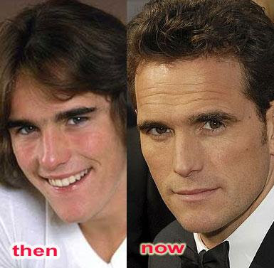 Matt Dillon Nose Reshaping Surgery