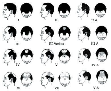 Male-pattern baldness - Symptom Checker - check medical symptoms