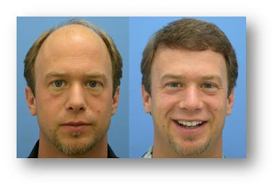 Hair Loss transplant before and after