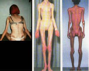 Bulimicas+famosas