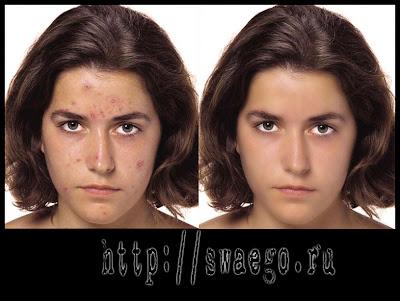 Чистка лица в Photoshop CS5