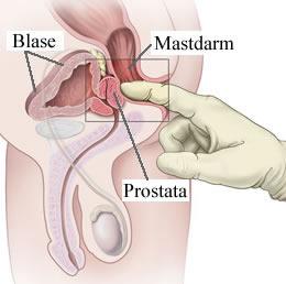 Cáncer de próstata de 30 años