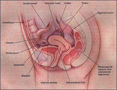 Common Sites of Endometriosis