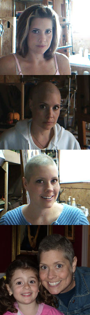 [Stages-of-Lori-with-Cancer.jpg]