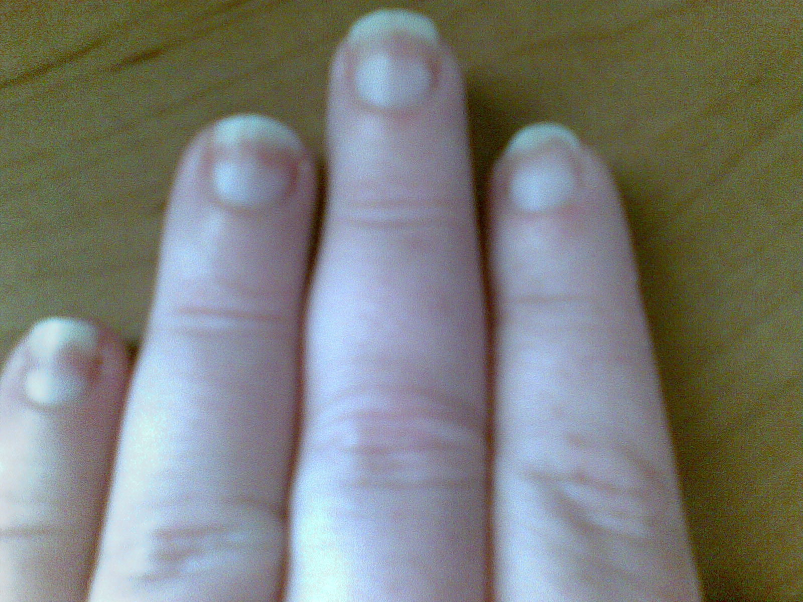 See How The Pink Part Of My Nails Is Turning White Crawling Up A Little Every Week If You Google Nail Beds Get Heart Or