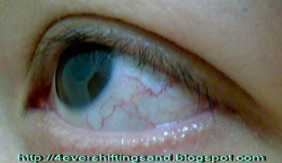 4~Ever Shifting Sand: Sore Eyes - Conjunctivitis