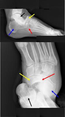 Bohler's angle ( Tuber joint angle )