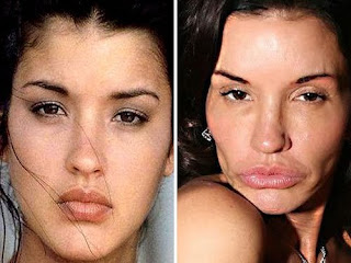 Top 13 worst plastic surgery