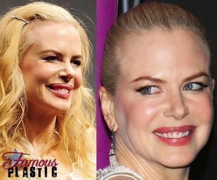 best plastic surgery: Who Celebrity Plastic Surgery