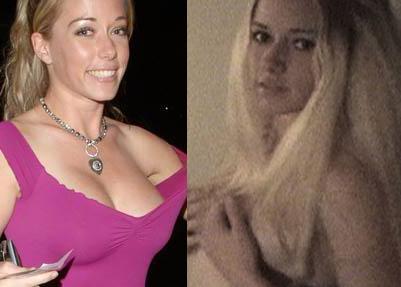 kendra wilkinson breasts