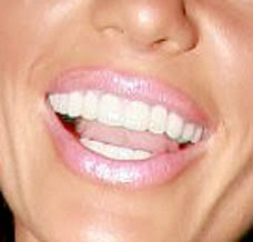 Hairstyles Trends For Women Katie Price Dental Problems