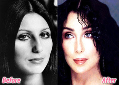 Cher before and after   (hosted by plasticcelebritysurgery.com)