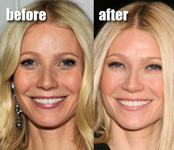 Gwyneth Paltrow before and after (image hosted by http://www.plasticcelebritysurgery.com)
