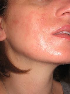 cracked lips accutane