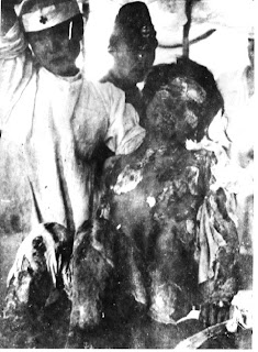 hiroshima-burn-victim-war-crime