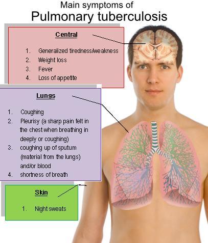 Symptoms Of: Tuberculosis Symptoms