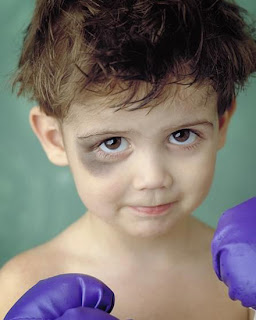 Black eye boy