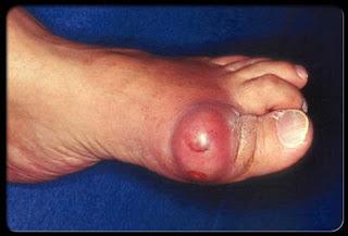 Penjelasan mengenai ASAM URAT / Gout