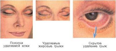 Die Masken für die Person für die trockene und feine Haut