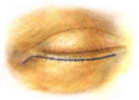 Die Säcke unter den Augen p