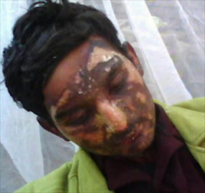Pakistani Muslims Beat and Burn Christian Pastor For Preaching ... To Christians