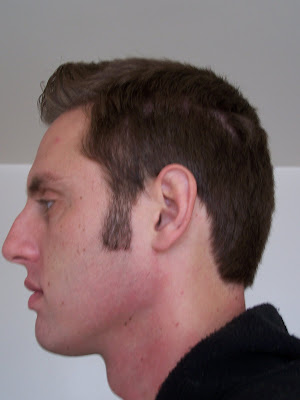 how to fix shaved sideburns