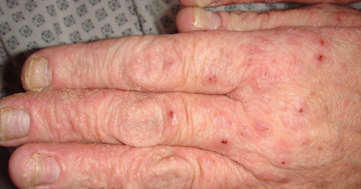Luto Scabies home remedy