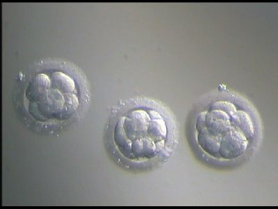 Going Through IVF: Egg Retrieval