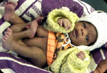 south african baby born with