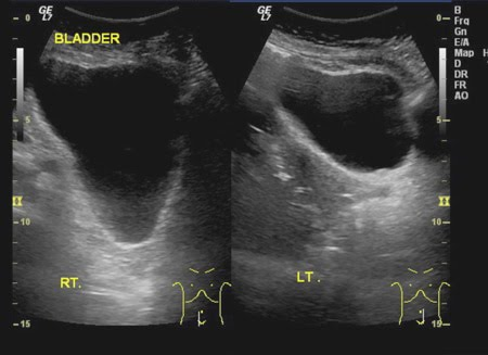 My E Radiology Cases Case 11 64 Year Old Waman With