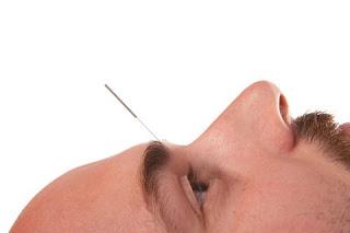Acupuncture Blog Chicago: Acupuncture Success in Baltimore Prison