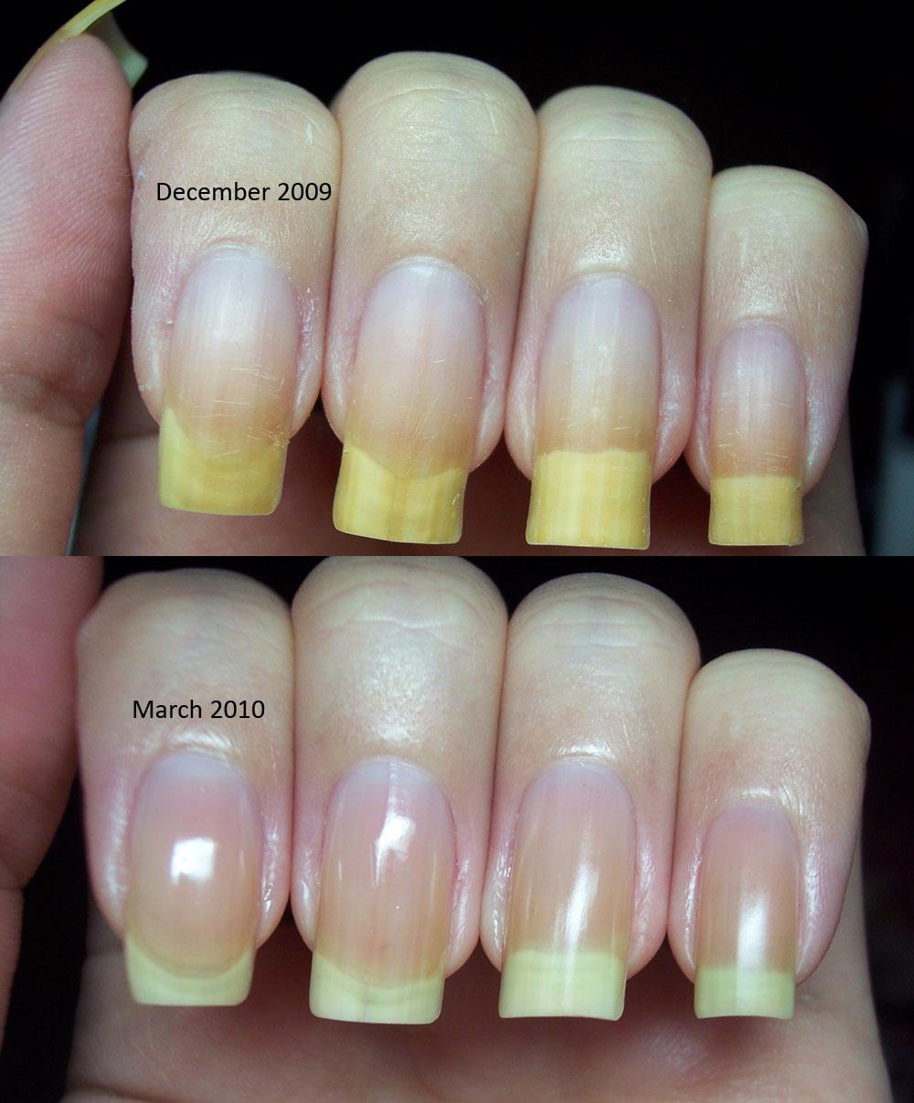 Nail Polish Discolored Nails Creative Touch