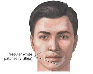 Leucoderma - White Skin Treatment